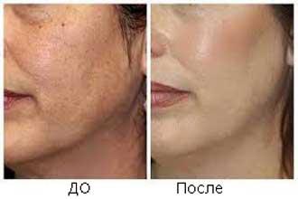 Дермабразия кожи лица